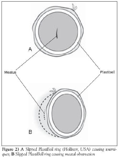 Plastibell Ring