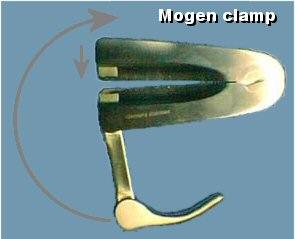 Picture of a Mogen clamp