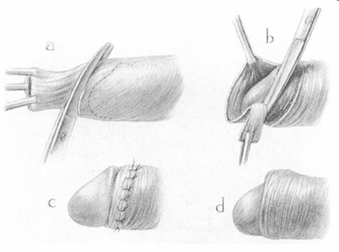 Scissors method of Sir Fredeerick Treves