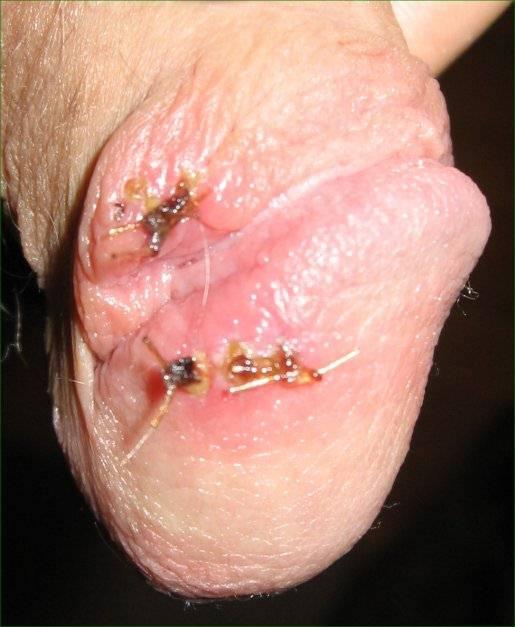 Neosporin for penis cuts
