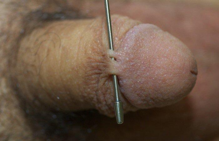 Skin bridge on penis