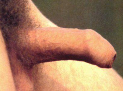 Uncircumcised Penis When Erect - getcureedcom