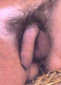 A Scot's penis again