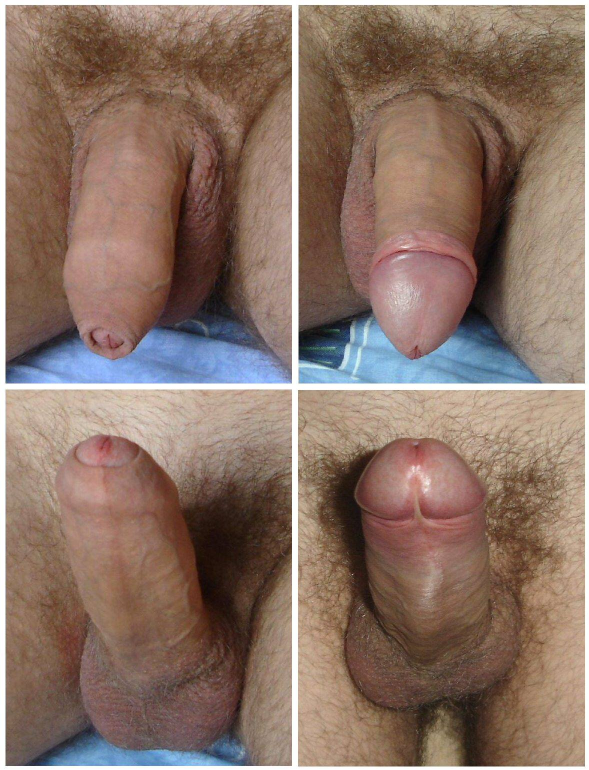 Appearance - Intact Vs Circumcised-4779